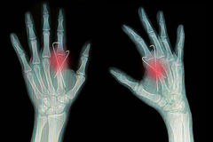 Film x-ray of hand fracture Royalty Free Stock Images