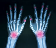 Film x-ray hands. Film x-ray both humans hands and multiple wrist arthritis, marking in red color Royalty Free Stock Photography