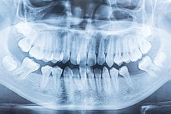 Film x-ray of a mouth. stock images