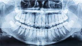 Film x-ray of a mouth. stock image