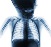 Film x-ray normal chest of baby . Upper half of body . Front view Royalty Free Stock Photo