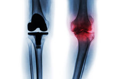 Film x-ray of osteoarthritis knee patient and artificial joint & x28; Total knee replacement & x29; . background.  royalty free stock photos