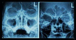 Film x-ray paranasal sinus show frontal sinus , maxillary sinus , ethmoid sinus Royalty Free Stock Photos