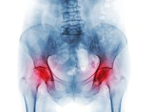Film x-ray pelvis of osteoporosis patient and arthritis both hip.  stock photography