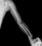 Film x-ray. Show arm of child and adult is holding child's arm Royalty Free Stock Photography