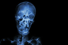 Film X-ray skull and blank area at right side stock photography