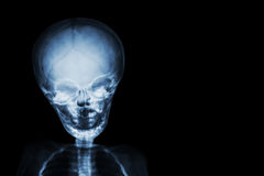 Film x-ray skull and body of child and blank area at right side stock image