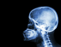 Film x-ray skull and cervical spine lateral view . blank area at left side Royalty Free Stock Photos