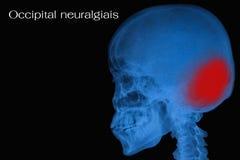 Film x-ray skull of human. View of film x-ray skull of human royalty free stock photos