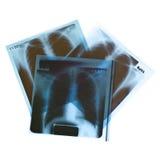 Film x-ray. On white background stock image
