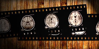Film on wooden background. Film with x-ray scans of brain on wooden background Stock Photos