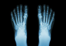 Film x-ray both foot ( front view ) Royalty Free Stock Photo