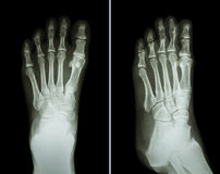 Film x-ray both foot ( 2 position : front view and side view ) Stock Image