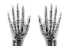 Film x-ray both hand AP show normal human hands on white background & x28; isolated & x29; Royalty Free Stock Photography