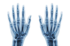Film x-ray both hand AP show normal human hands on white background & x28; isolated & x29; Royalty Free Stock Photo