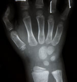 Film x-ray both hand AP : show normal human`s Royalty Free Stock Photos