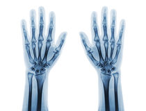 Film x-ray of both normal human hands . front view Stock Photo