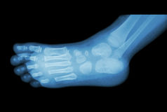 Film x-ray of child 's foot ( side view ) ( lateral ) Royalty Free Stock Image