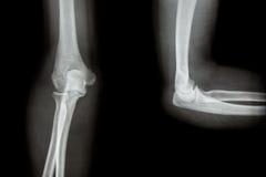 Film X-ray elbow AP(Antero-posterior)/lateral Royalty Free Stock Photo