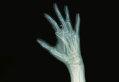 Film x-ray of hand fracture Stock Images