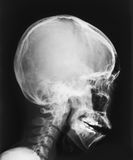 Film X-ray image of head Royalty Free Stock Photography