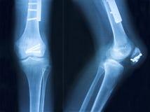 Film x-ray klnee Royalty Free Stock Image