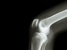 Film x-ray knee joint with arthritis ( Gout , Rheumatoid arthritis , Septic arthritis , Osteoarthritis knee ) and blank area at le Stock Images
