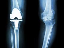 Film x-ray knee of osteoarthritis knee patient and artificial joint Stock Images