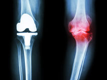 Film x-ray knee of osteoarthritis knee patient and artificial joint Stock Photos