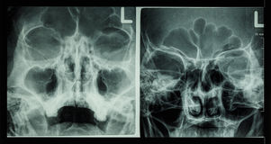 Film x-ray paranasal sinus show frontal sinus , maxillary sinus , ethmoid sinus Royalty Free Stock Image