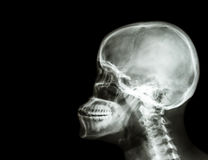 Cervical Spine Xray Side View Royalty Free Stock Photos ... X Ray Views Of Skull
