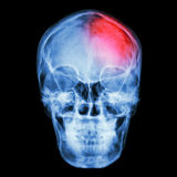 Film X-ray skull and headache. (Stroke,Cerebrovascular accident) Royalty Free Stock Image