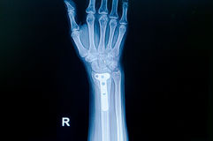 Film x-ray wrist fracture : show fracture distal radius Royalty Free Stock Images