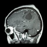 Filma MRI av hjärnan med hjärntumöret (pilformig nivå, sidosikt, sidosikten) (läkarundersökning, hälsovård, vetenskapsbakgrund) arkivfoton