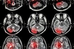 Filma MRI (kopiering för magnetisk resonans) av hjärnan (slaglängden, hjärntumöret, cerebral infarkt, den intracerebral blödninge arkivfoto