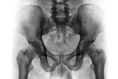 Filma röntgenstrålen av den normala mänskliga bäcken och höftledar royaltyfri bild