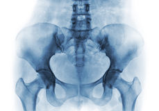 Filma röntgenstrålen av den normala mänskliga bäcken och höftledar royaltyfria foton