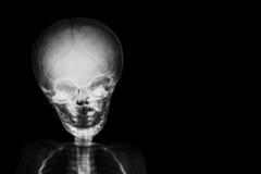 Filma röntgenstråleskallen och kroppen av barnet och förbigå område på rätsidan arkivfoto