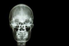 Filma röntgenstråleskallen av människan och förbigå område på rätsidan (läkarundersökning, vetenskap och sjukvårdbegrepp och bakg Arkivbild