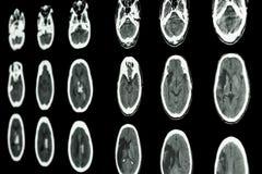 FilmCT-bildläsning av den ischemic slaglängden för hjärnshow och hemorrhagic strok royaltyfri bild