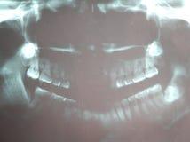 Filme de raio X dental da mulher asiática foto de stock