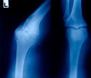 Filme de raio X foto de stock