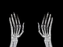 Filme de raio X da mão do osso quebrado hospital Foto de Stock Royalty Free