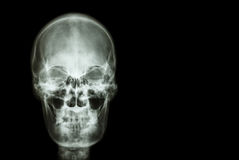Filme el cráneo de la radiografía del área humana y en blanco en el lado derecho (médico, ciencia y concepto y el fondo de la ate Fotografía de archivo