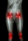 Filme el cuerpo de la radiografía del niño (abdomen, nalga, muslo, rodilla) y de la artritis en ambos cadera, amba rodilla (gota, Fotografía de archivo libre de regalías