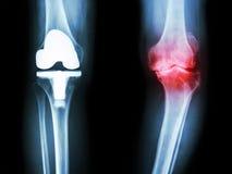 Filme la rodilla de la radiografía del paciente de la rodilla de la osteoartritis y de la junta artificial fotos de archivo