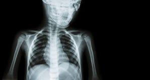 Filme o corpo do raio X da criança e anule a área no lado direito (o fundo médico) Foto de Stock Royalty Free