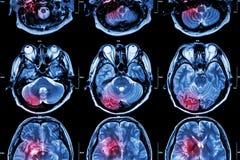 Filmen Sie MRI (magnetische Resonanz- Darstellung) des Gehirns (Anschlag, Hirntumor, zerebrale Infarktbildung, intracerebral Blut Stockbild