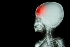 Filmen Sie Röntgenstrahlkörper des Kindes und der Kopfschmerzen (die Erkrankung des Gehirns) (lokalisiert) Lizenzfreies Stockbild