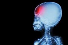 Filmen Sie Röntgenstrahlkörper des Kindes und der Kopfschmerzen (die Erkrankung des Gehirns) (lokalisiert) Stockfotos